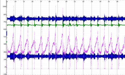 Synchronized streams in Sonic Visualizer. Here you can see two channel audio synchronized with accelerometer data (top, green) and balanceboard data (bottom, purple).